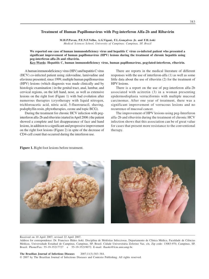 hpv treatment interferon