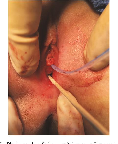 hpv urethra treatment