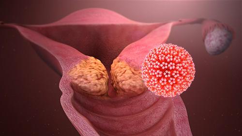 hpv viren gebarmutterhals