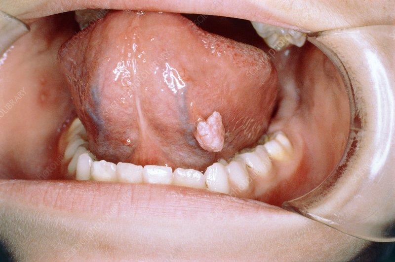usturoiul contra parazitilor intestinali