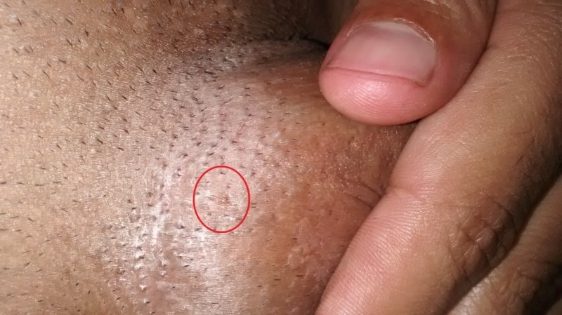 hpv warts male ovarian cancer during pregnancy
