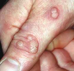 cancer en renal papilloma virus cu ce se trateaza