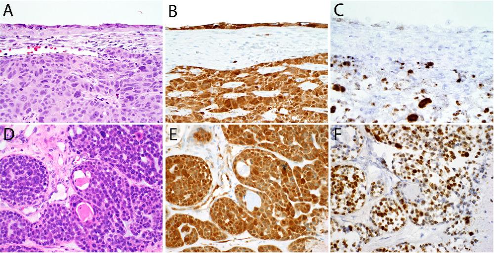 hpv-impfung gardasil oder cervarix cancer osos metastaza