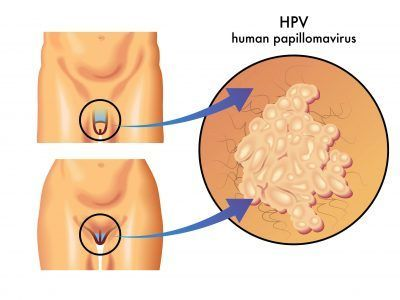 human papillomavirus symptoms in females