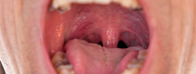 imagenes del papiloma humano en la boca