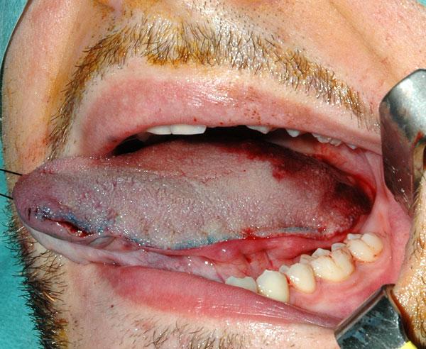 intervento papilloma lingua