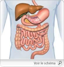 la cancer du colon