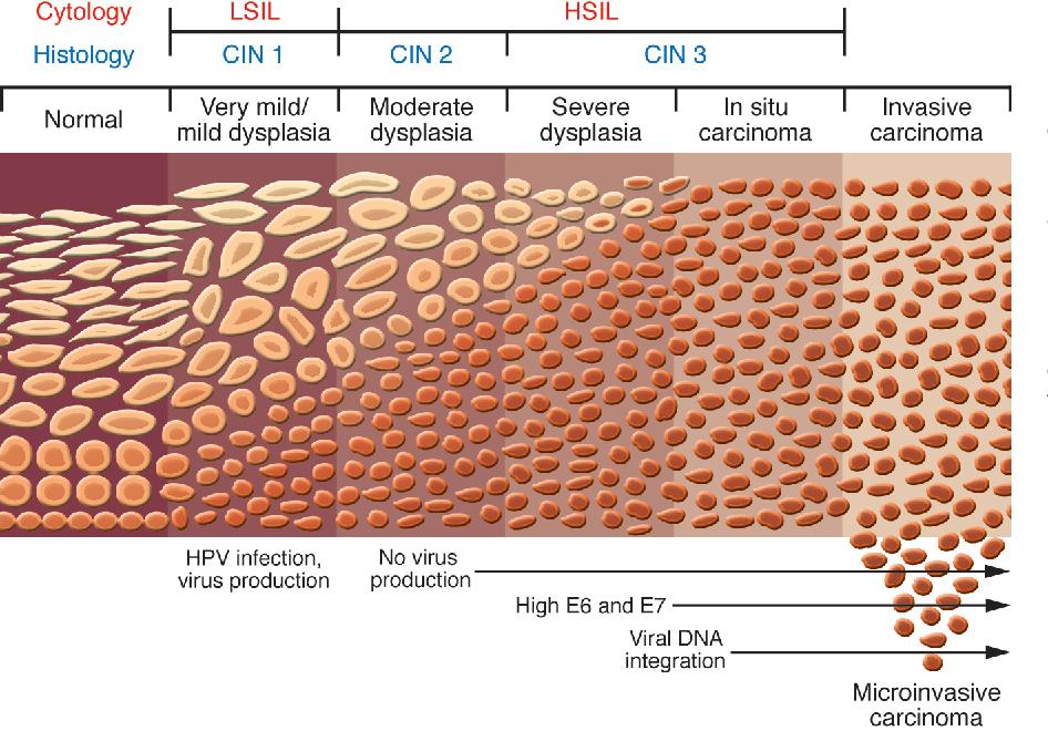 papiloma faringeo imagenes hpv virus kako se dobija