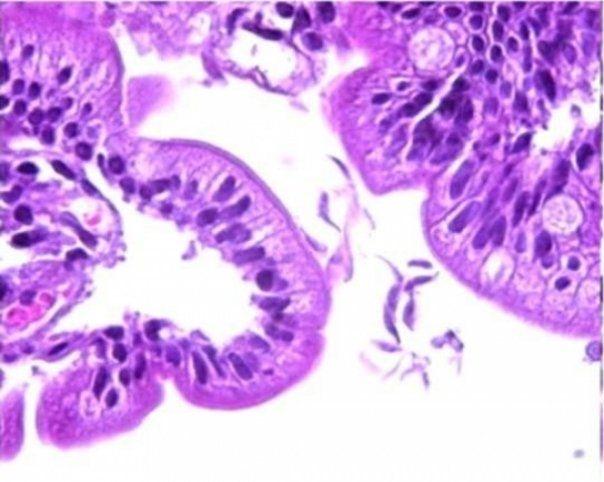 limbrici oxiuri virus papiloma en la boca