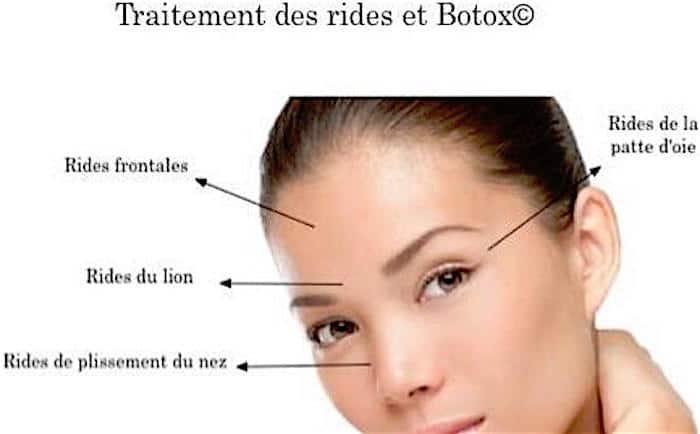 toxine botulique - Traducere în română - exemple în franceză | Reverso Context