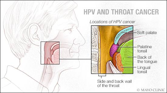 my husband has hpv throat cancer am i at risk