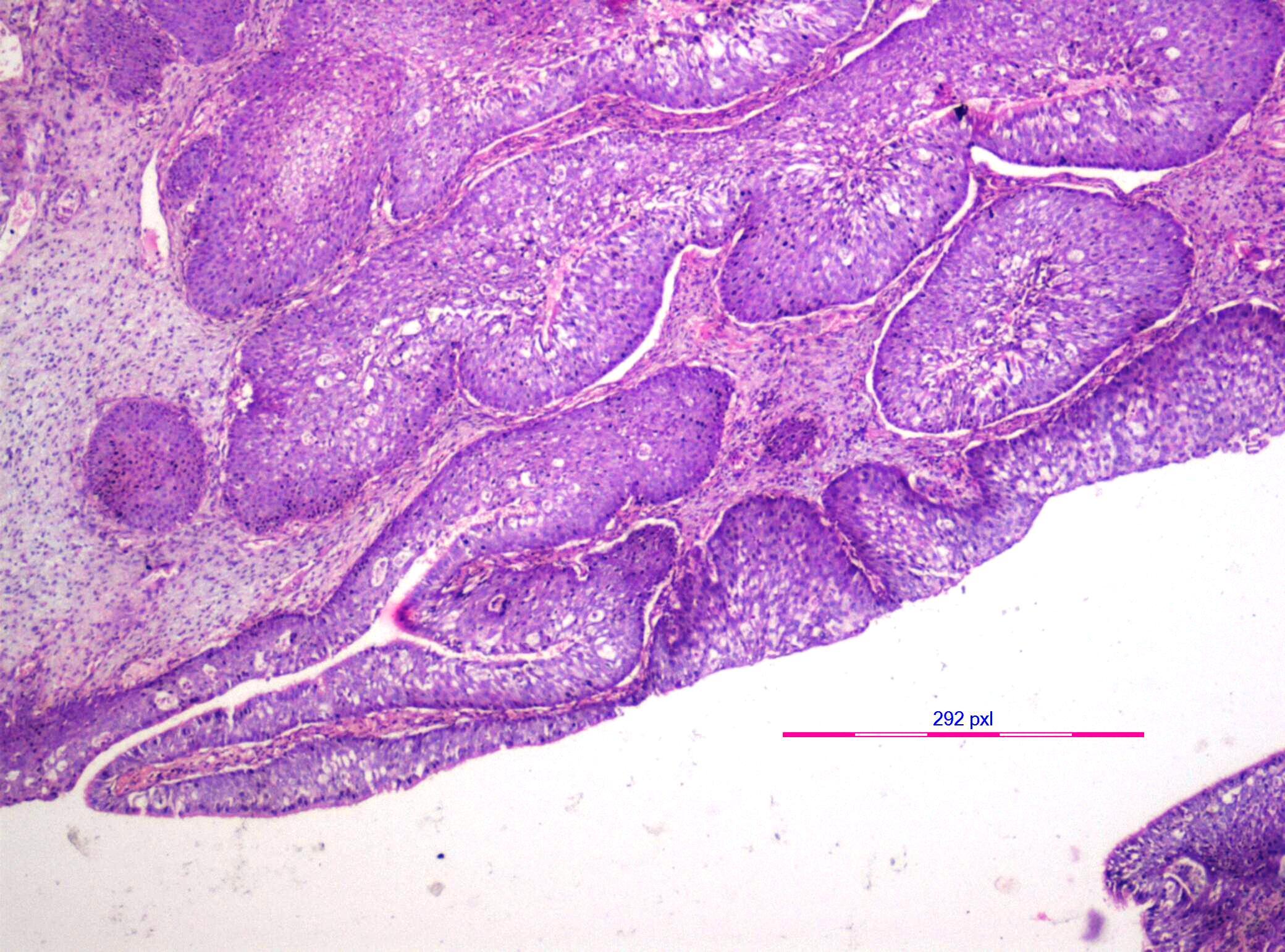 nasal papilloma malignant cancerul bucal