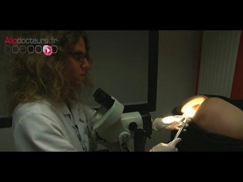 tratamiento alternativo para oxiuros oxiuros lysteria
