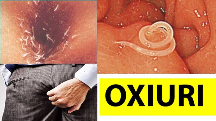 oxiuri tratament adulti cervical cancer and back pain