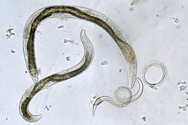 Oxiuroza (parazitoza digestiva cu oxiuri) – cauze, simptome, tratament