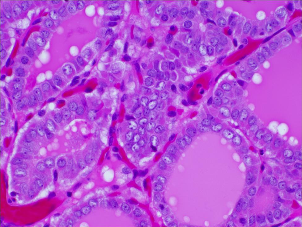 Adenocortical adenom vs glanda normală
