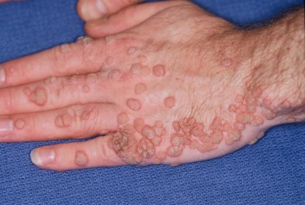 papilloma contagio