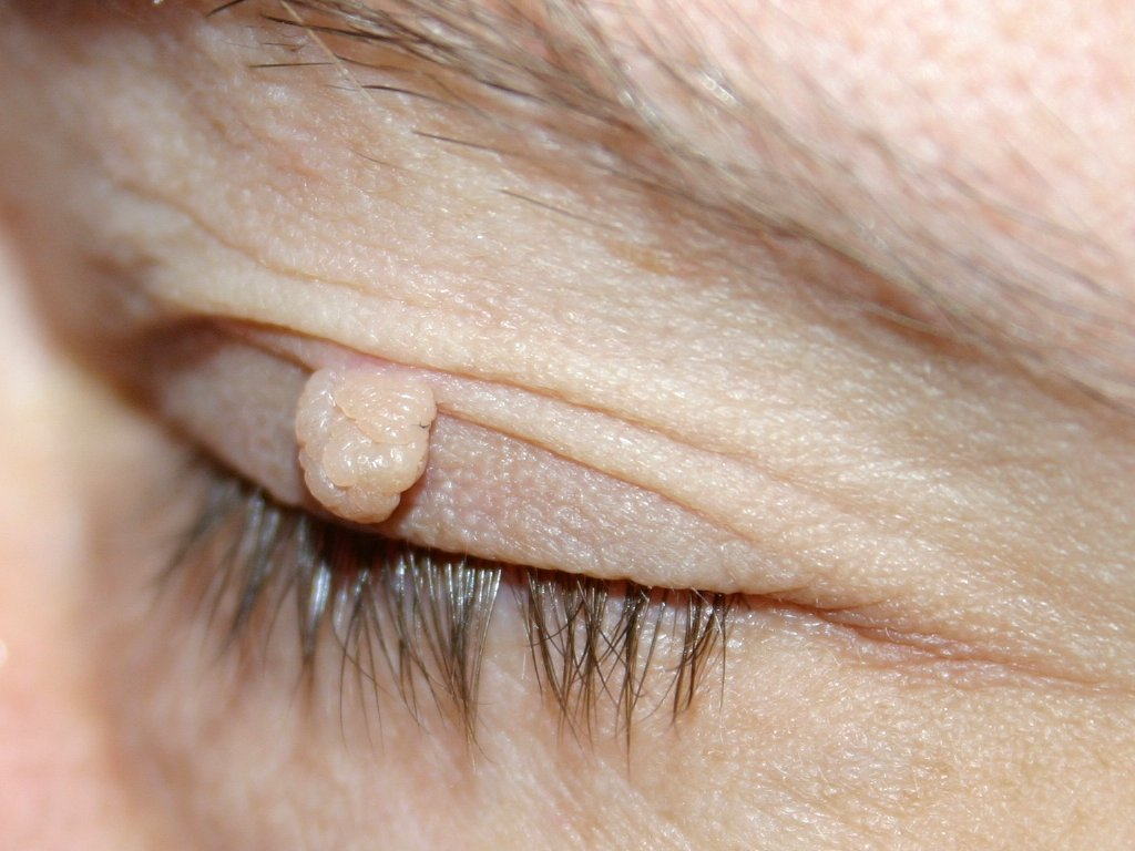 papilloma fibroma