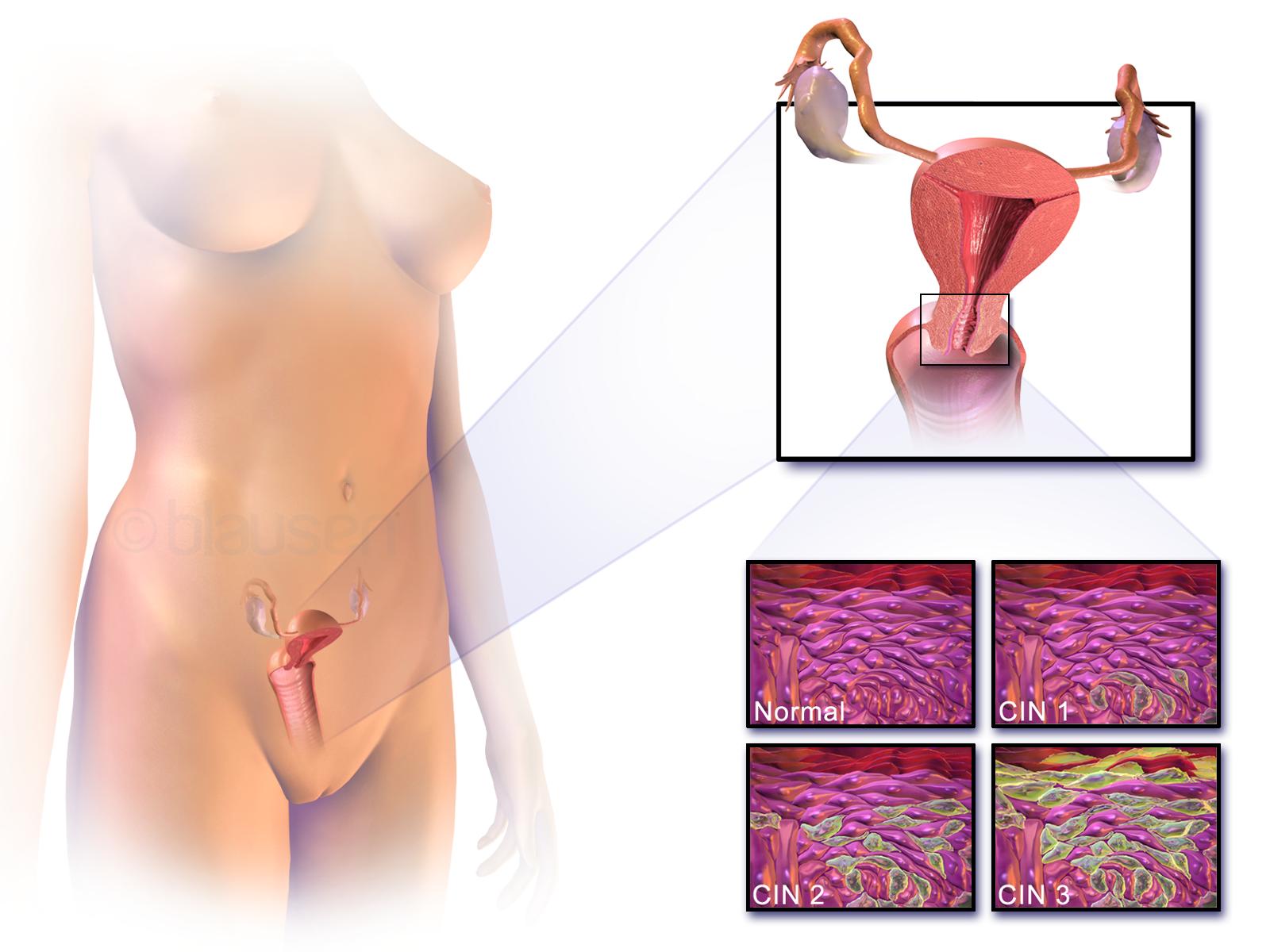 acog guidelines hpv cervical cancer enterobiasis case report