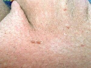 papilloma seno benigno human papillomavirus infection spread by saliva