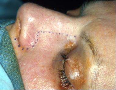 papilloma surgery nose