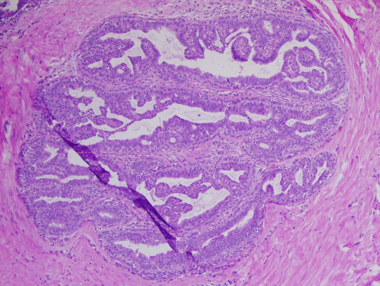 papilloma tumora hpv skin warts