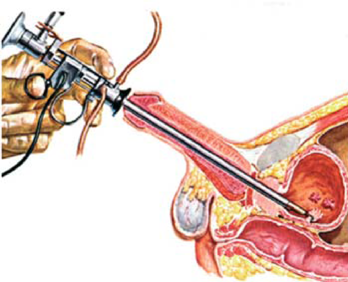 papilloma cancer pictures cancer sistem urinar