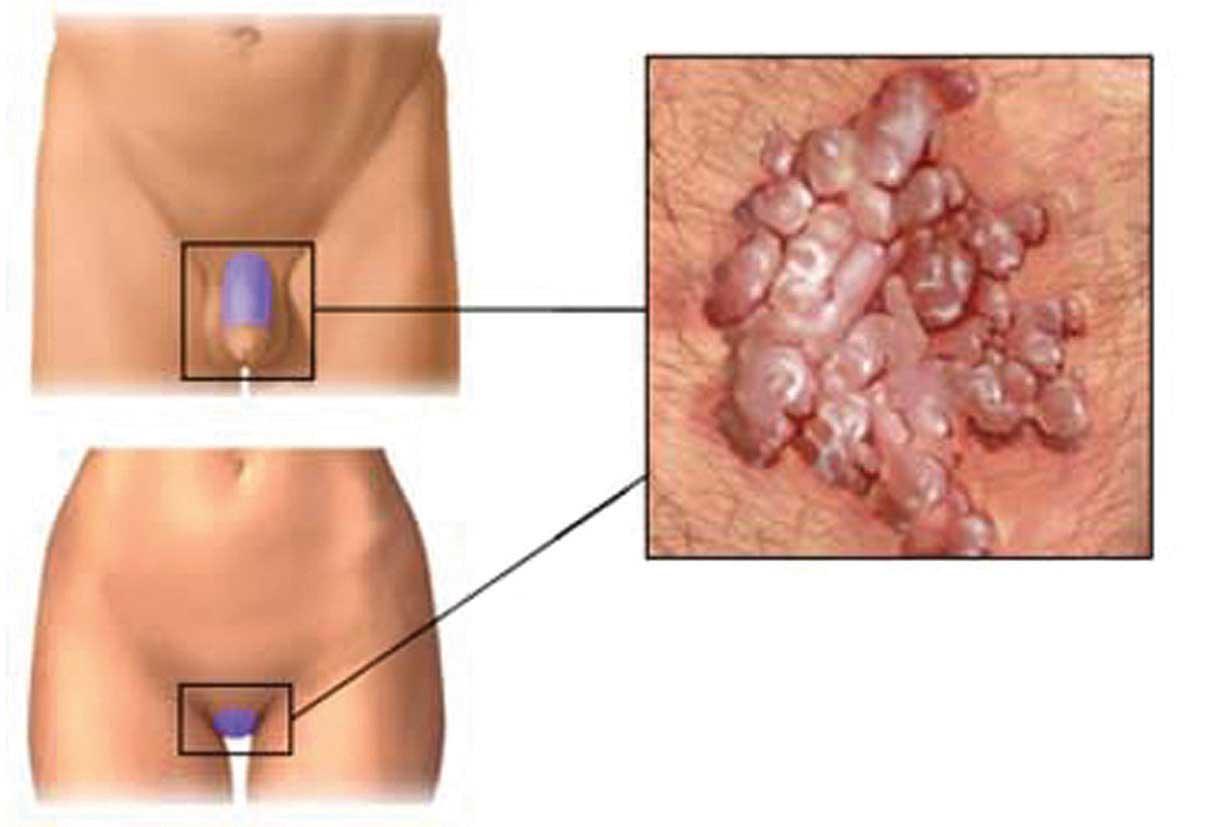 papilloma virus donne immagini