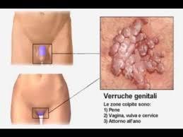 papilloma virus esterno sintomi hpv 16 positive head and neck cancer