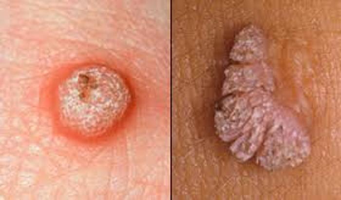 testicular cancer kinds