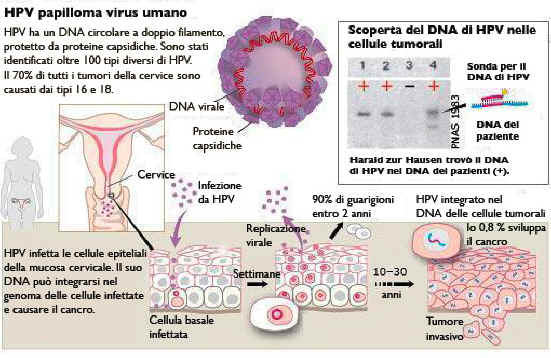 papilloma virus infezione papiloma virus humano en boca