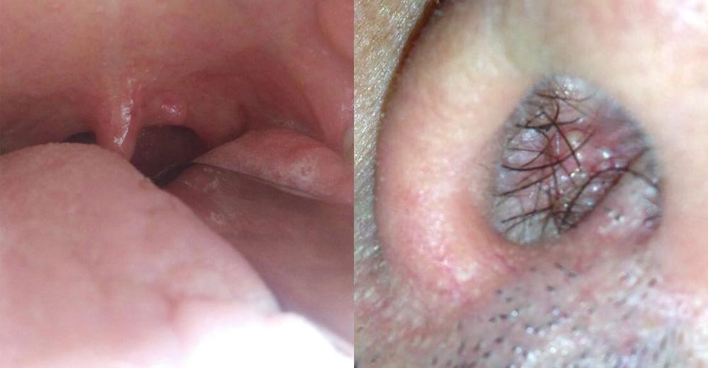 papilloma virus italiano sintomi squamous cell papillomas removal
