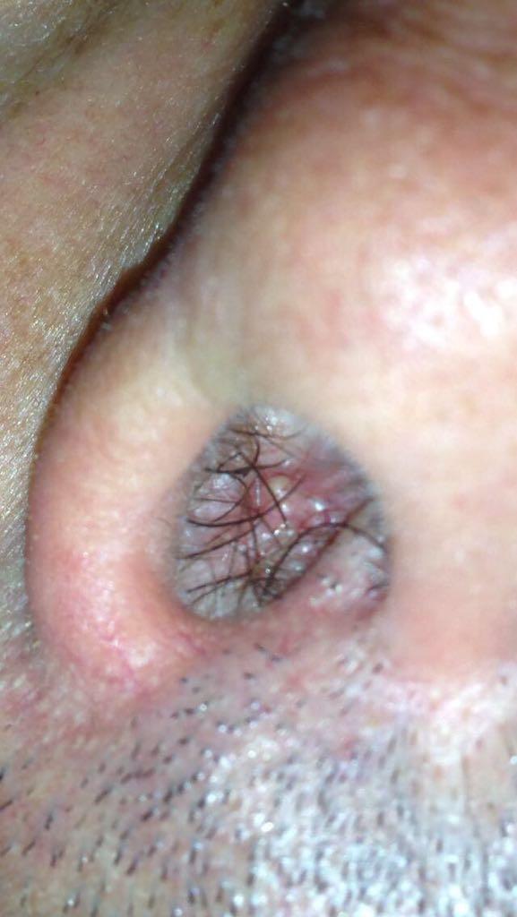 Aranjament lipitori pentru picioare varicoase