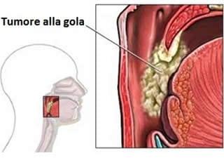 papilloma virus tumore tonsille papilloma ugola cura