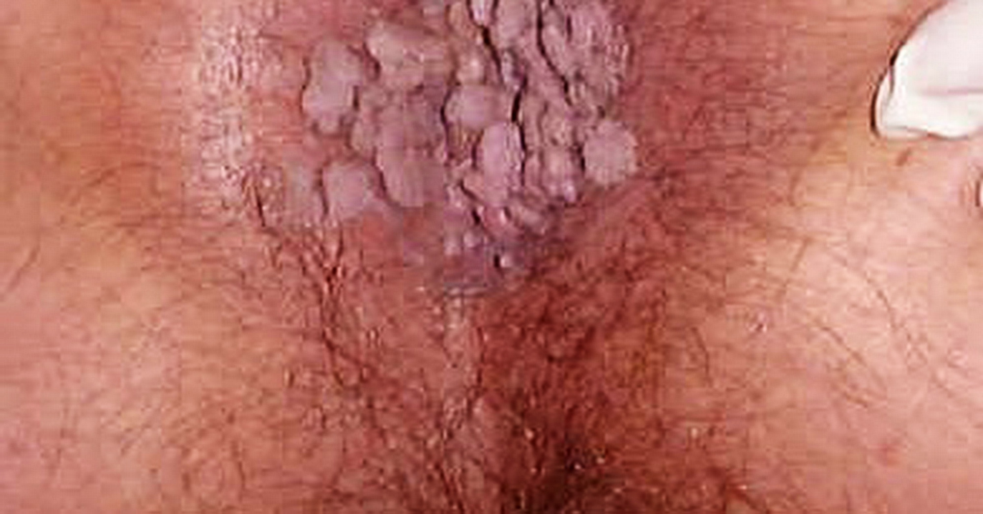 papilloma virus uomo crema hpv vaccine risks
