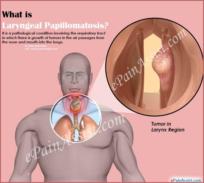 papillomatosis symptoms