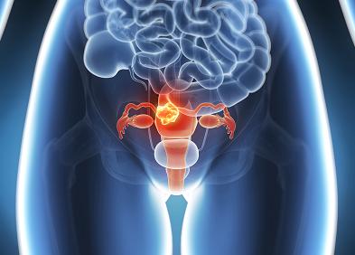 papillomavirus col uterus traitement