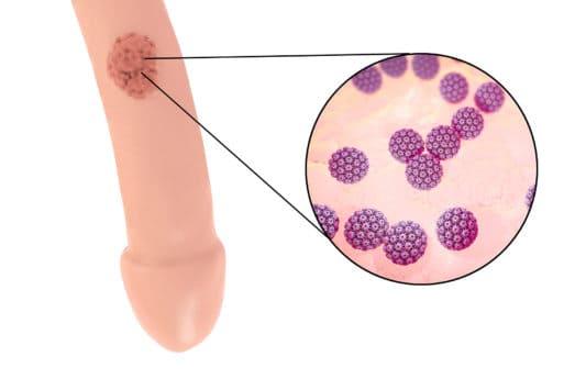 papillomavirus homme verge