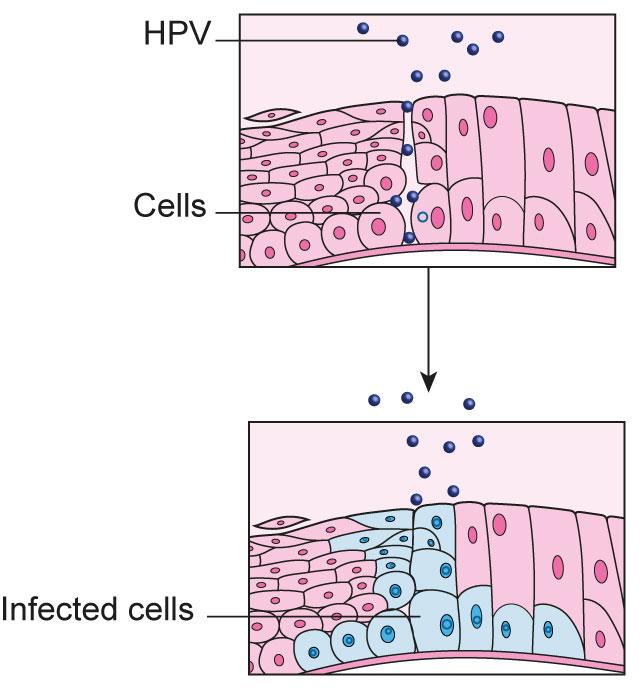 papillomavirus infection of the cervix