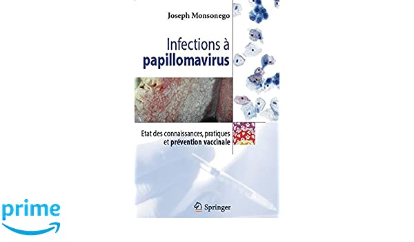 Totul despre HPV. Cum îl depistezi şi la ce trebuie să fii atentă | Click