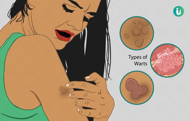 ciuperci medicinale que es papilomatosis reticulada y confluente