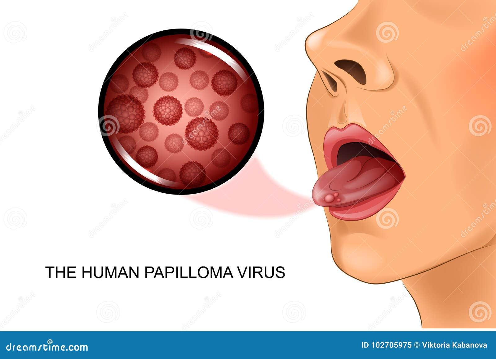 que es la cancer de prostata intraductal papilloma breast pain