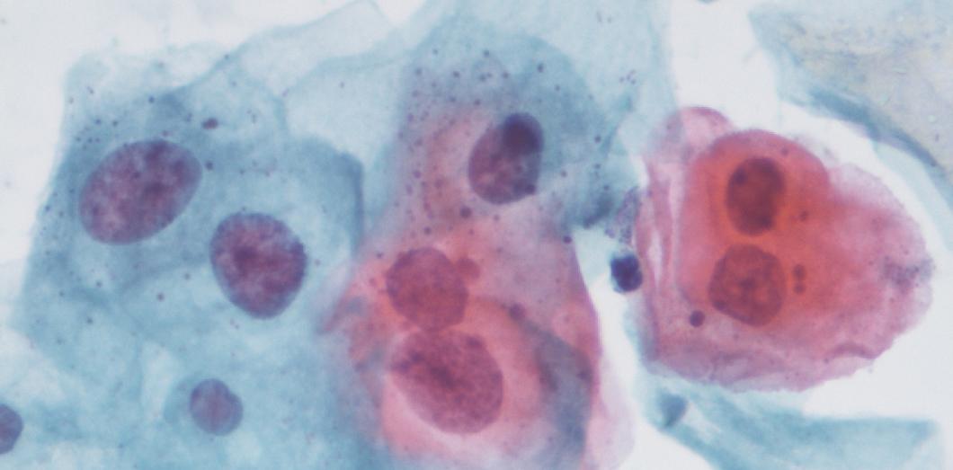 nhs hpv side effects paraziti u ljudskim crijevima