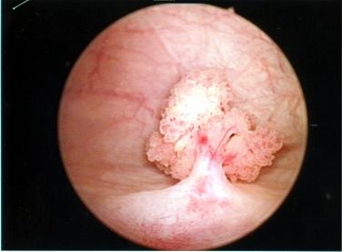 papiloma alla vescica gastric cancer world health organization