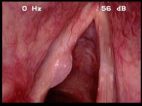 Infecția HPV - primariabeuca.ro