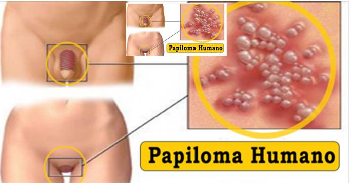 papiloma humano en un hombre bacterii benefice omului