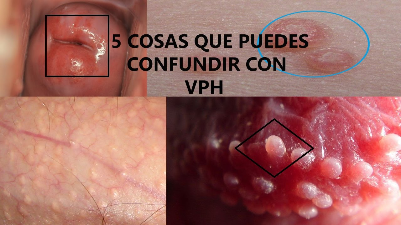 tratamiento de virus del papiloma humano toxine morille