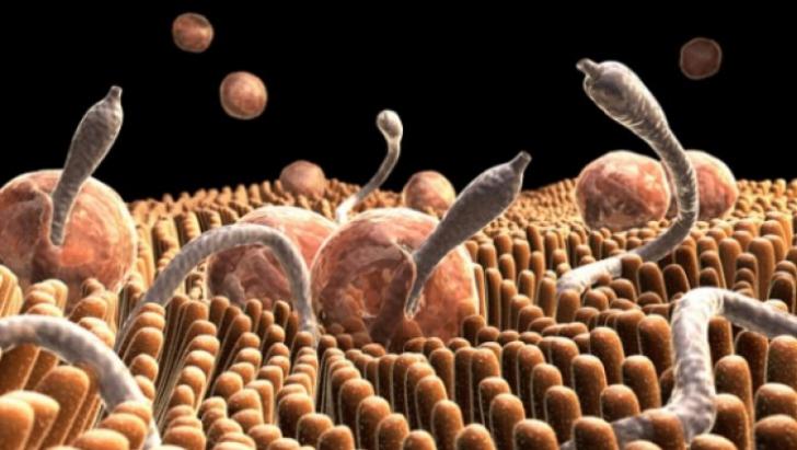 parazi?i intestinali tratament homeopat pt paraziti intestinali