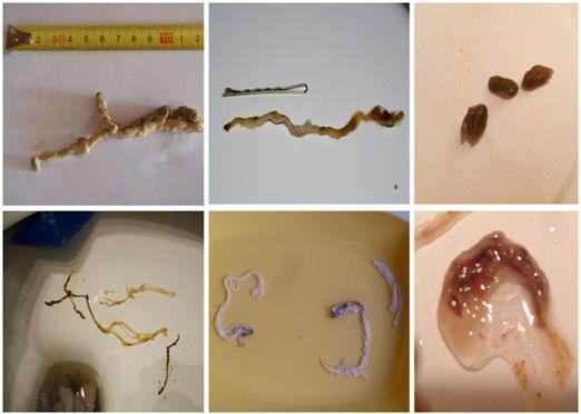 parazit ve stolici enterobius vermicularis = oxyuris vermicularis