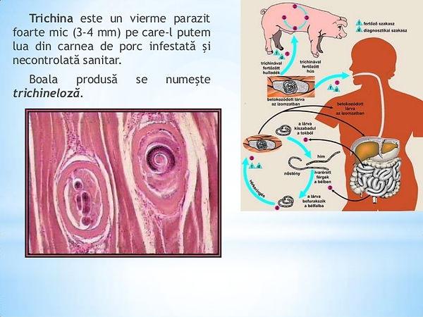 Invazia viermei în ficat - Hepatită -
